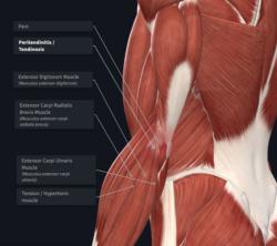 Modello 3D gomito posteriore - epicondilite