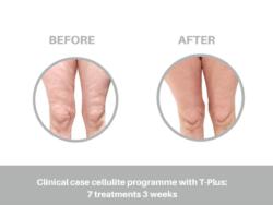 trattamento cellulite con tecar